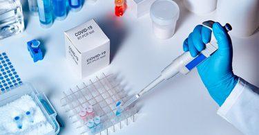 COVID-19 Koronavirus testovi, liječnička ruka koja provodi testove.